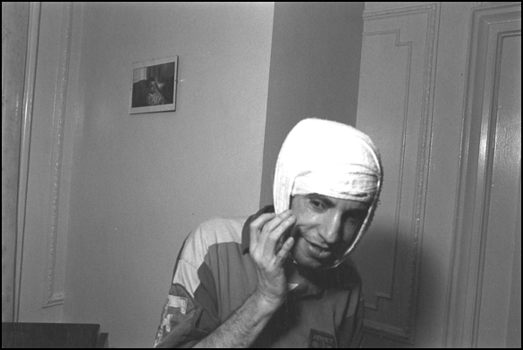 mike with bandaged head