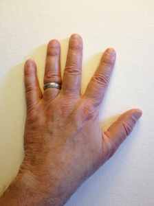 Photograph of Left Hand