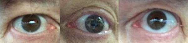 Photomontage: My Eyes