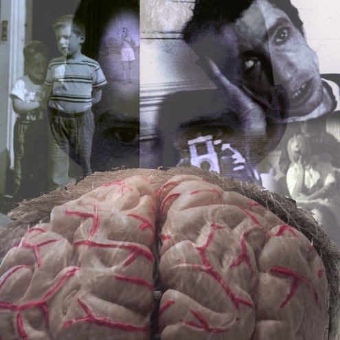 Photograph: Montage with Brain