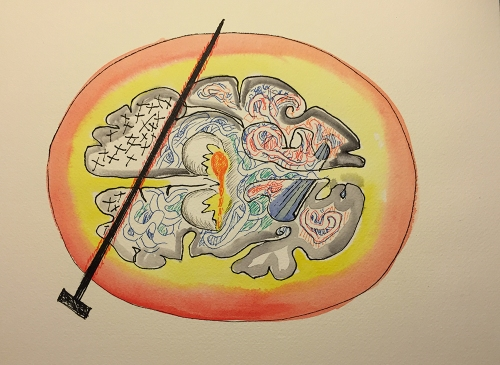 Watercolor Pen and Ink Study: Frontal Lobotomy