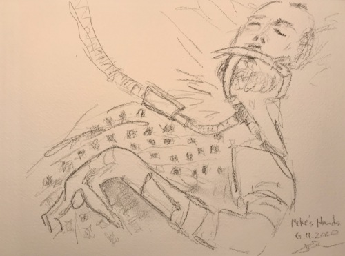 Pencil Sketch: Mike's Gnarled Arm, Still on Respirator